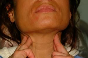 oral cancer1