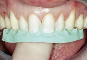 Cosmetic Dentist Birmingham, AL