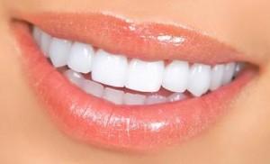 Birmingham Porcelain Veneer Dentist
