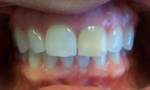 The dark front tooth