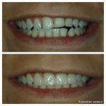 4-porcelain-veneers-leveling-front-teeth-f