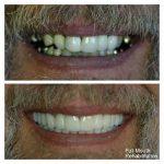 Full-mouth-rehab-f