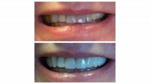 crowns-veneers-and-bridge-transform-smile-f