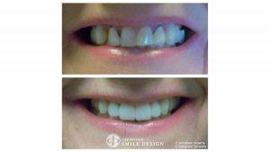 2-porcelain-veneers-front-teeth-before-after-featured