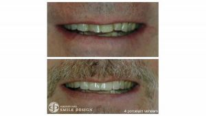 4-porcelain-veneers-before-after-featured