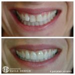 4-porcelain-veneers-woman-before-after-featured