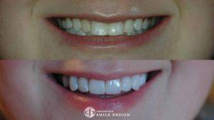 8-porcelain-veneers-replacing-composite-bonding-before-after-featured