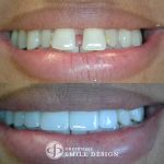 featured-image-4-porcelain-veneers-front-teeth-closeup